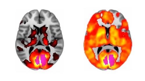 brain scan lsd